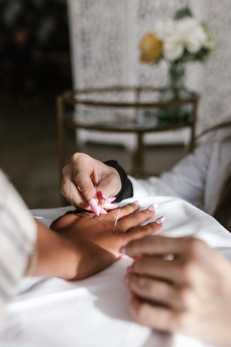 teknik akupunktur