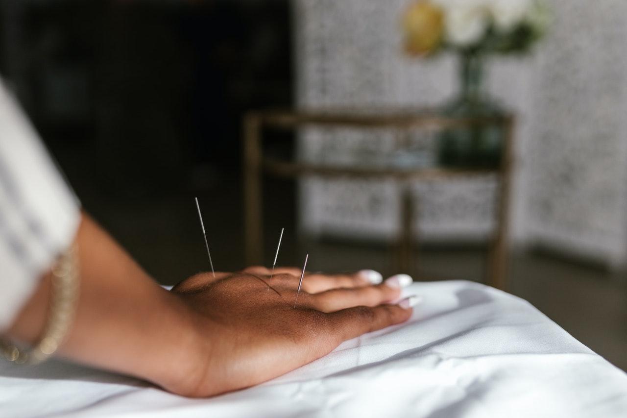 manfaat akupunktur