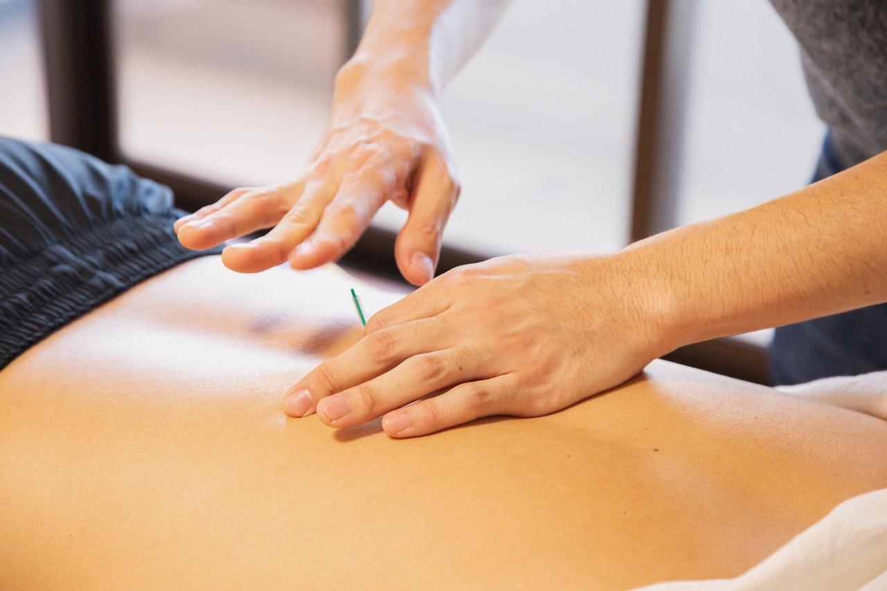 pengobatan akupunktur